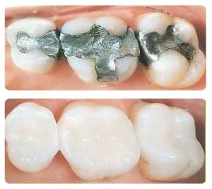 Non-Metal Fillings dental procedures